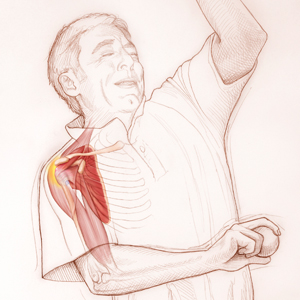 shoulder-tendonitis-injury-prevention-23012012