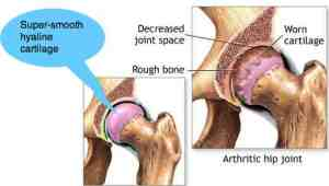 Hip-arthritis-side-by-side