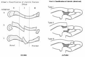 clav fractures